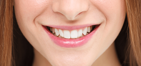 Image of a woman smiling with white teeth